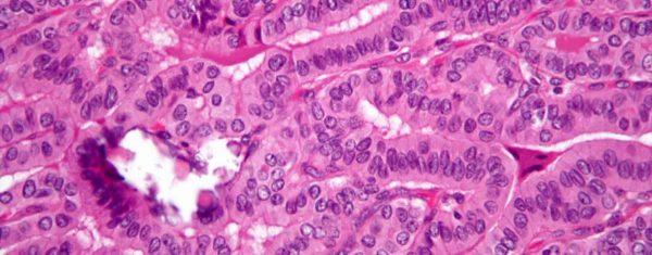 θηλώδες καρκίνωμα θυρεοειδούς γενικός χειρουργός κώστας χαράλαμπος αθήνα